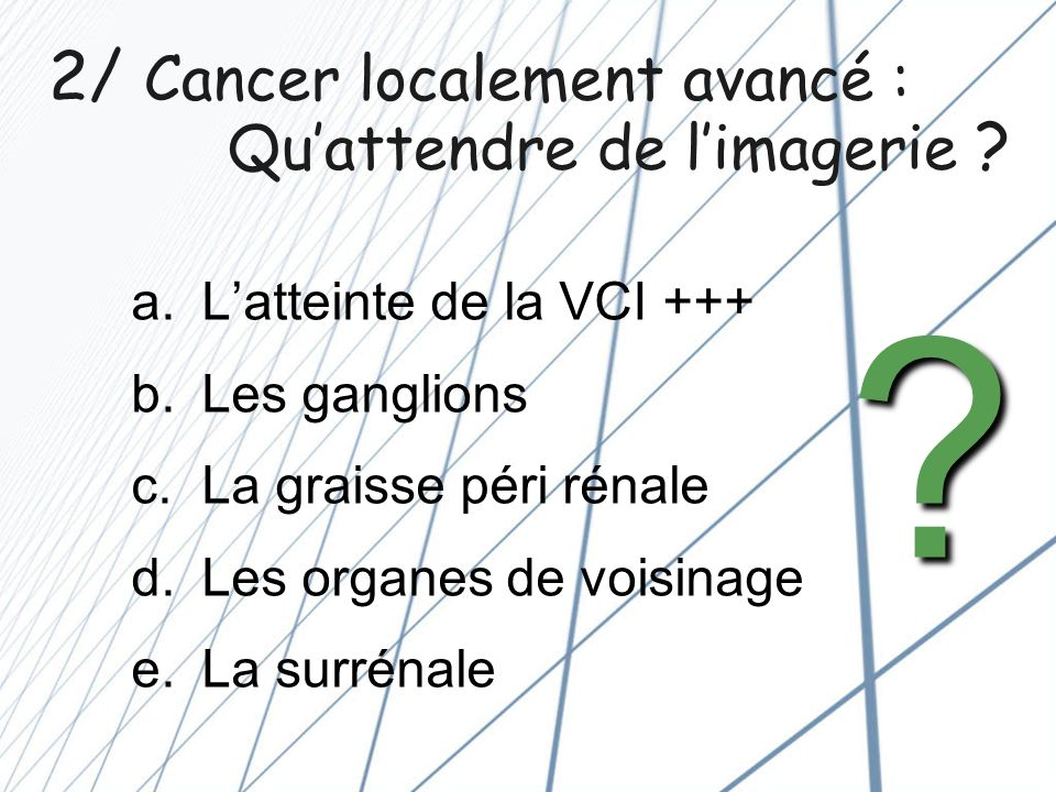 2/ Cancer localement avancé : Qu'attendre de l'imagerie
