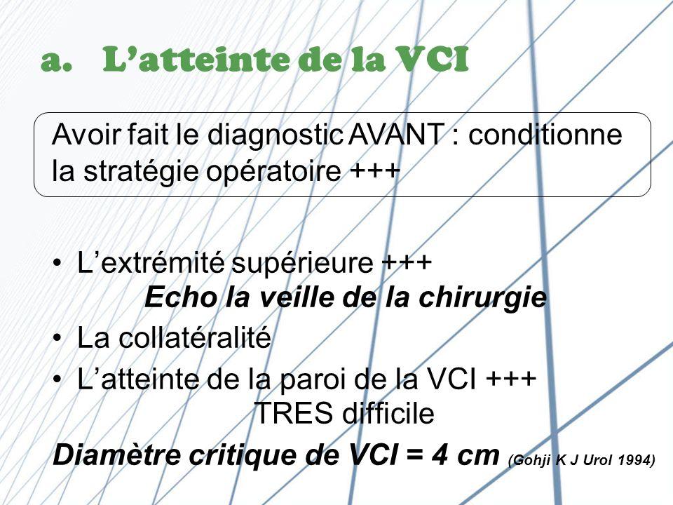 L'atteinte de la VCI Avoir fait le diagnostic AVANT : conditionne la stratégie opératoire +++