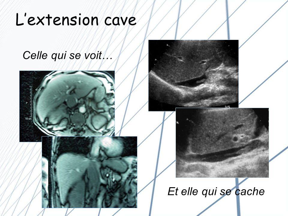 L'extension cave Celle qui se voit… Et elle qui se cache