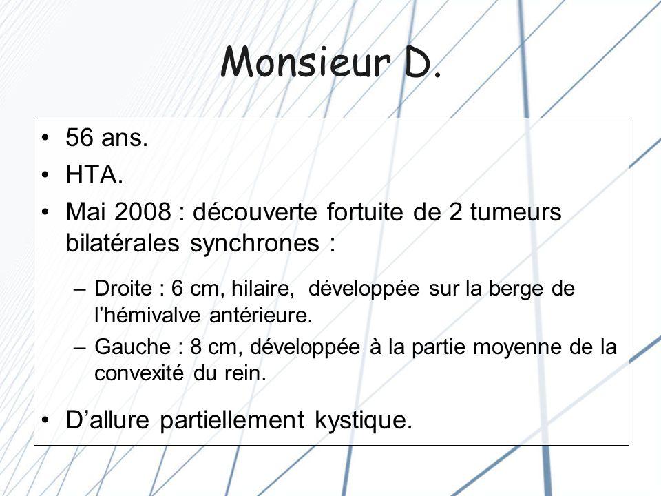 Monsieur D. 56 ans. HTA. Mai 2008 : découverte fortuite de 2 tumeurs bilatérales synchrones :