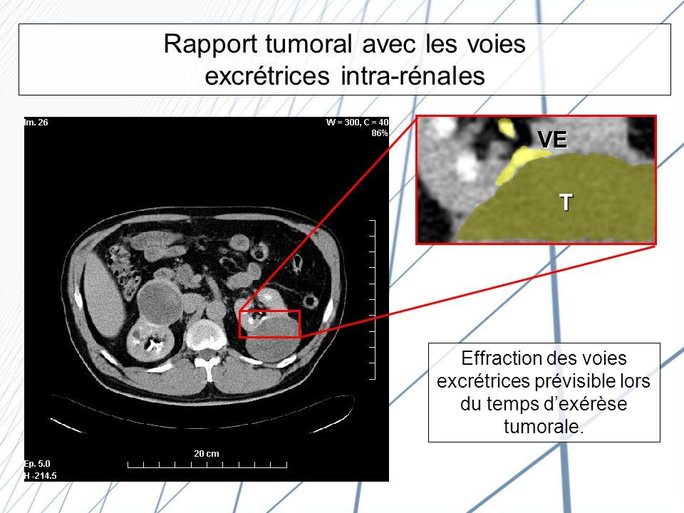 Rapport tumoral avec les voies excrétrices intra-rénales