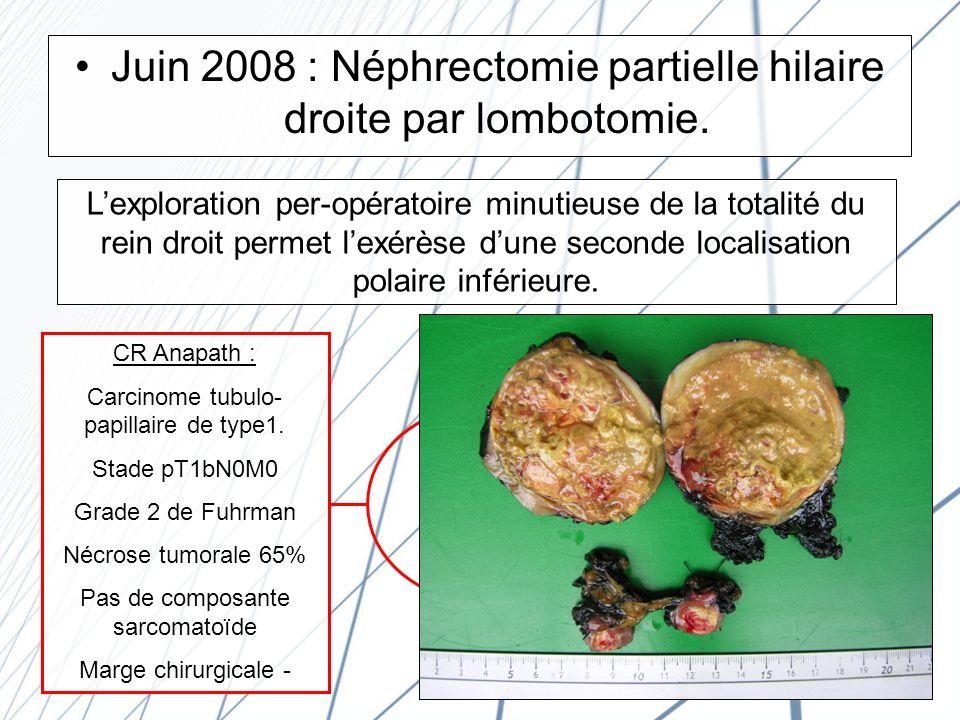 Juin 2008 : Néphrectomie partielle hilaire droite par lombotomie.