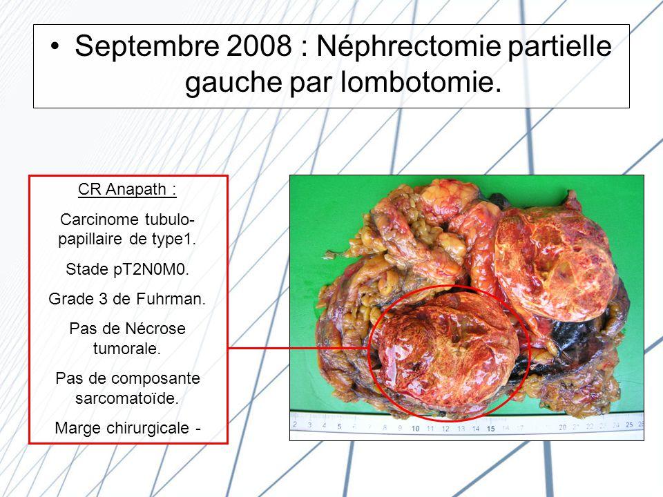 Septembre 2008 : Néphrectomie partielle gauche par lombotomie.