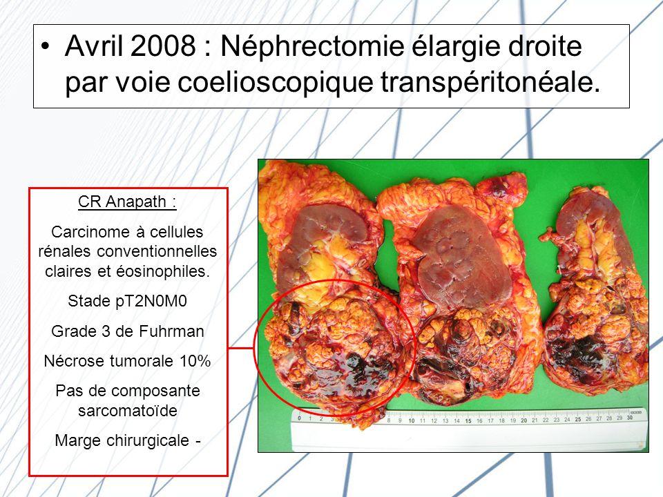Avril 2008 : Néphrectomie élargie droite par voie coelioscopique transpéritonéale.