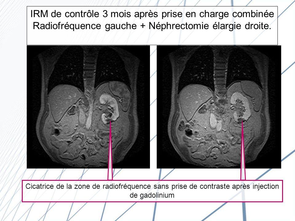 IRM de contrôle 3 mois après prise en charge combinée Radiofréquence gauche + Néphrectomie élargie droite.