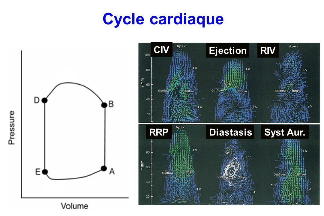 Cycle cardiaque CIV Ejection RIV RRP Diastasis Syst Aur.