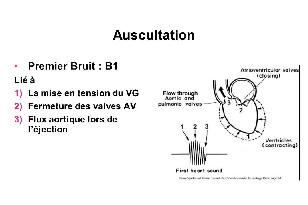 Auscultation Premier Bruit : B1 Lié à La mise en tension du VG