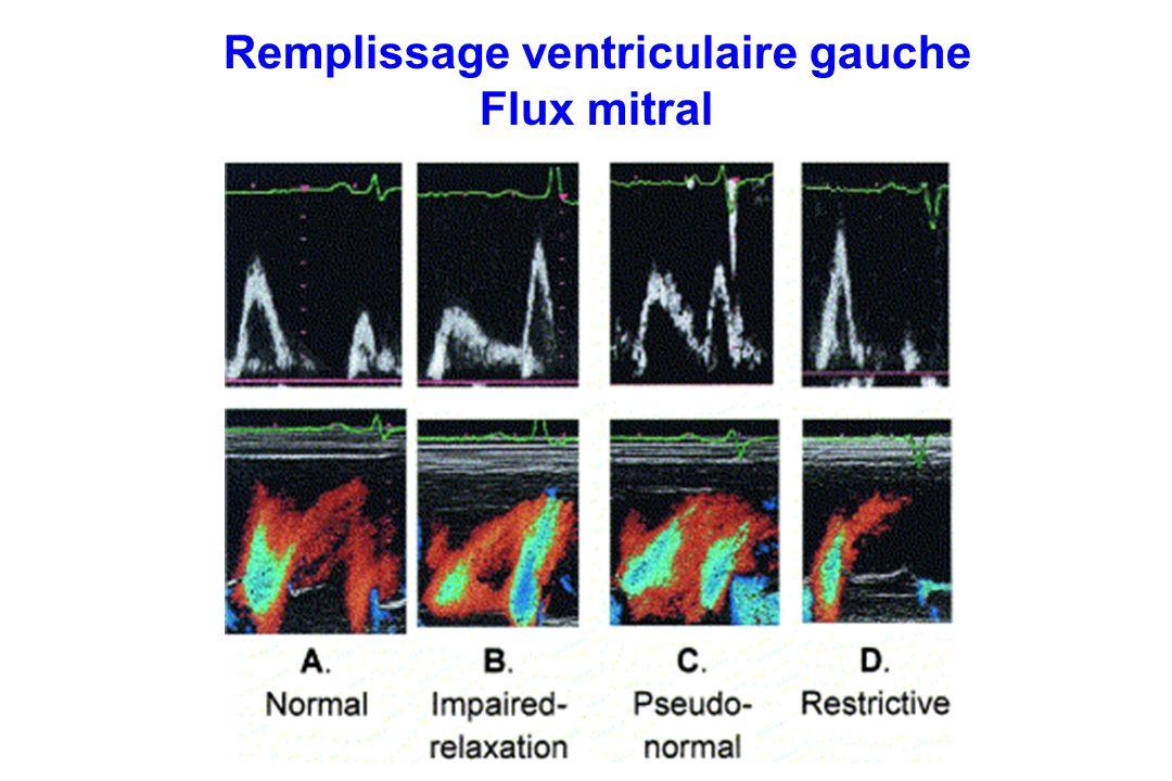 Remplissage ventriculaire gauche