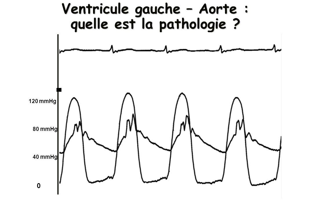Ventricule gauche – Aorte : quelle est la pathologie