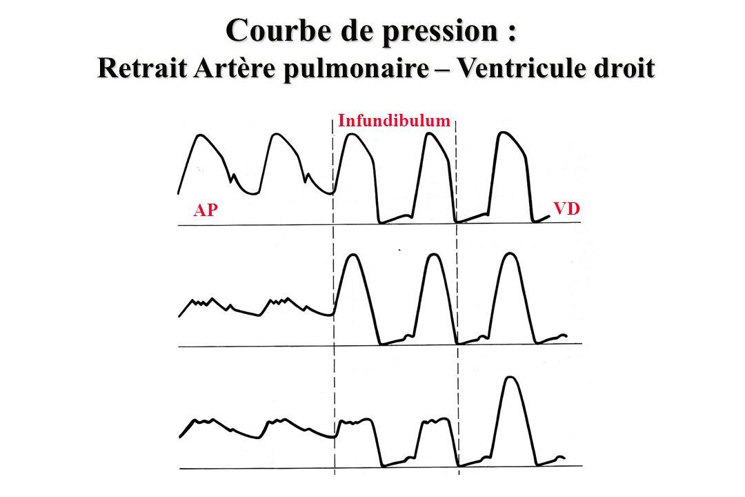 Courbe de pression : Retrait Artère pulmonaire – Ventricule droit