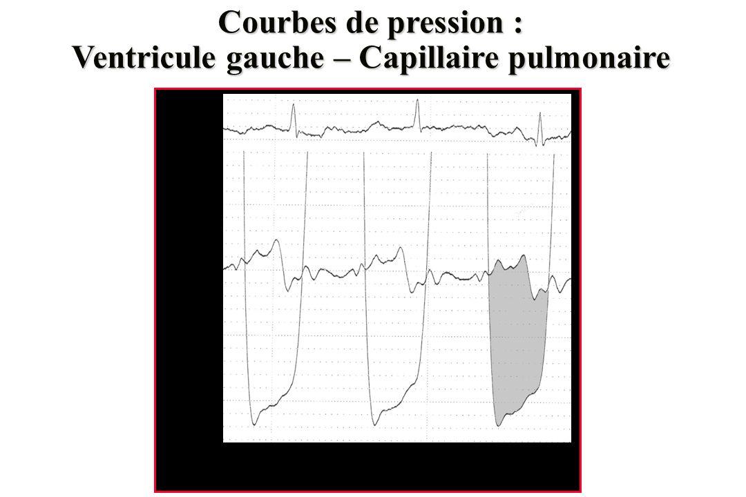 Ventricule gauche – Capillaire pulmonaire