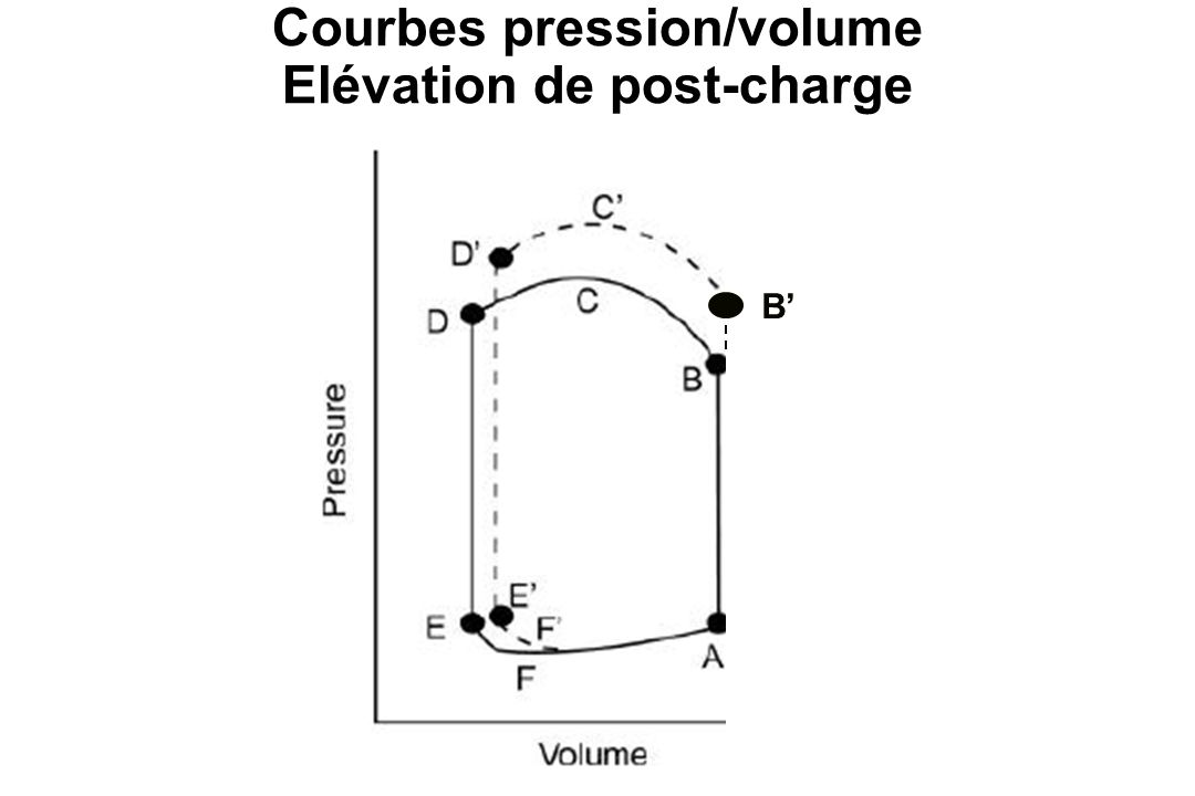 Courbes pression/volume Elévation de post-charge