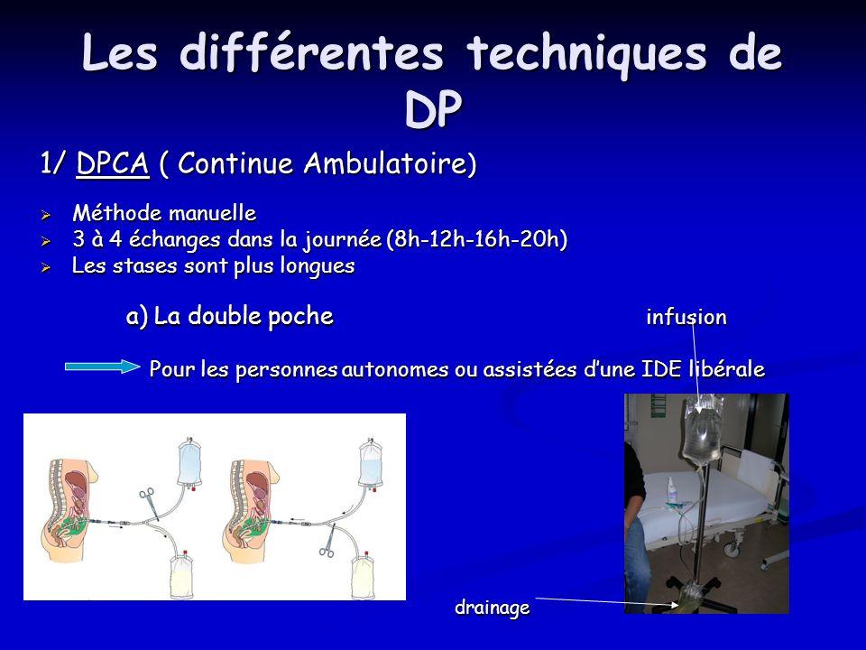 Les différentes techniques de DP