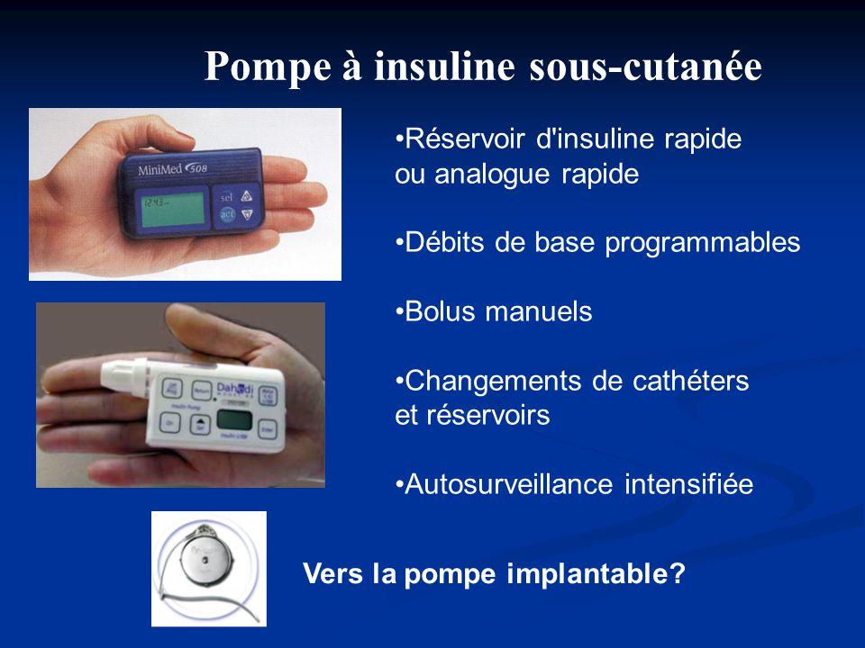 Pompe à insuline sous-cutanée