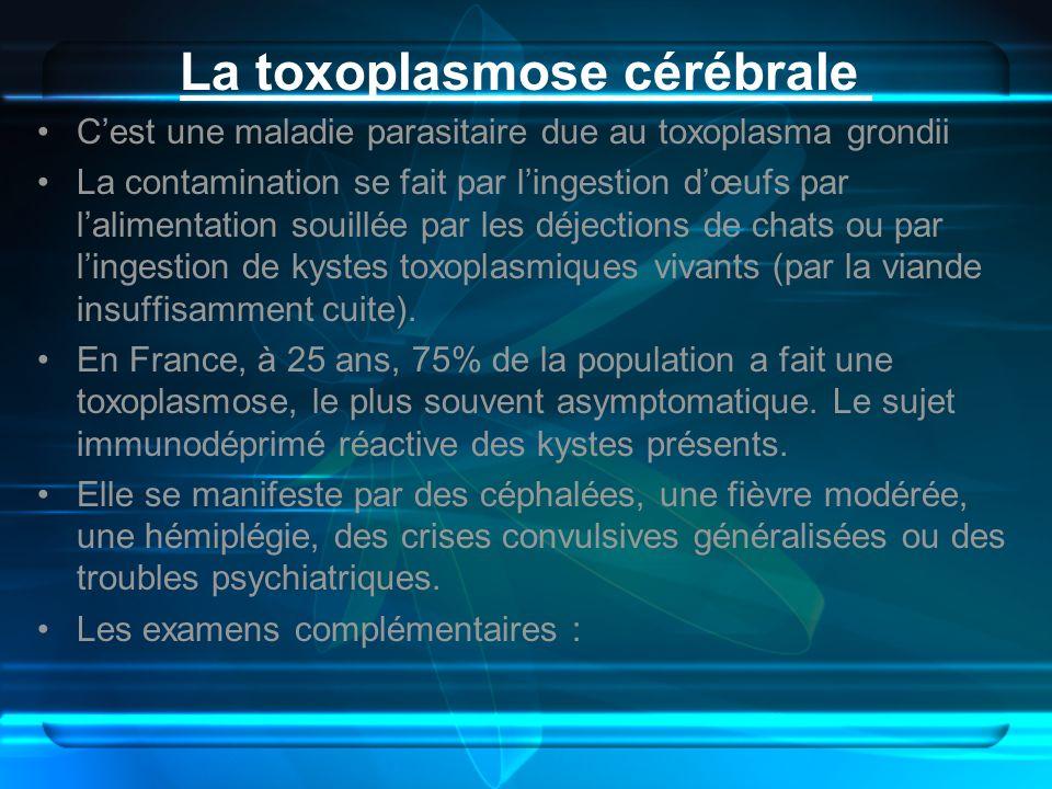 La toxoplasmose cérébrale
