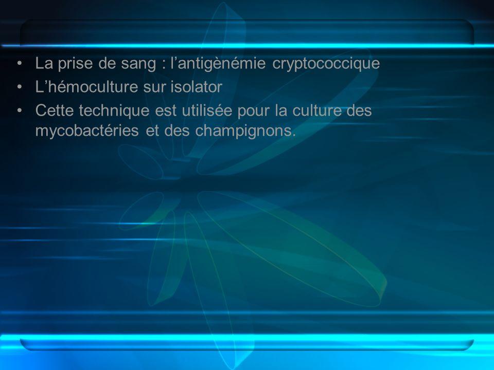 La prise de sang : l'antigènémie cryptococcique