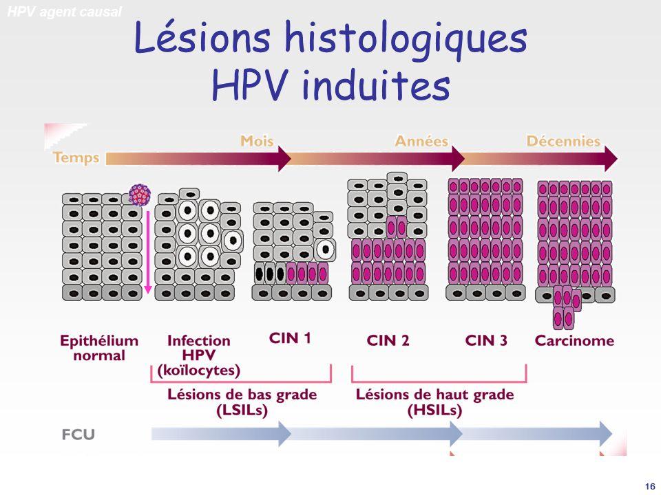 Lésions histologiques HPV induites