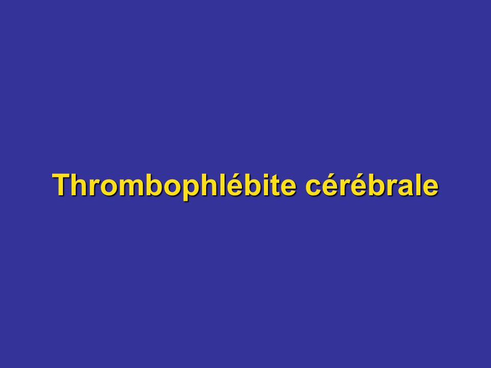 Thrombophlébite cérébrale