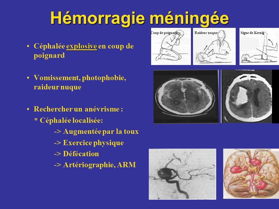Hémorragie méningée Céphalée explosive en coup de poignard
