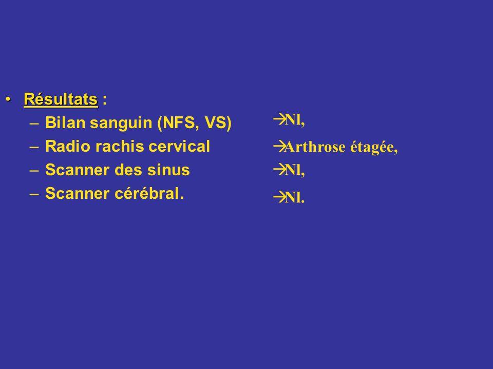 Résultats :Bilan sanguin (NFS, VS) Radio rachis cervical. Scanner des sinus. Scanner cérébral. Nl, Arthrose étagée,