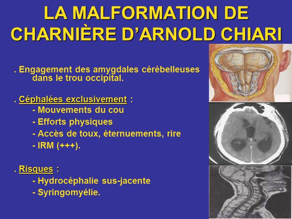 LA MALFORMATION DE CHARNIÈRE D'ARNOLD CHIARI