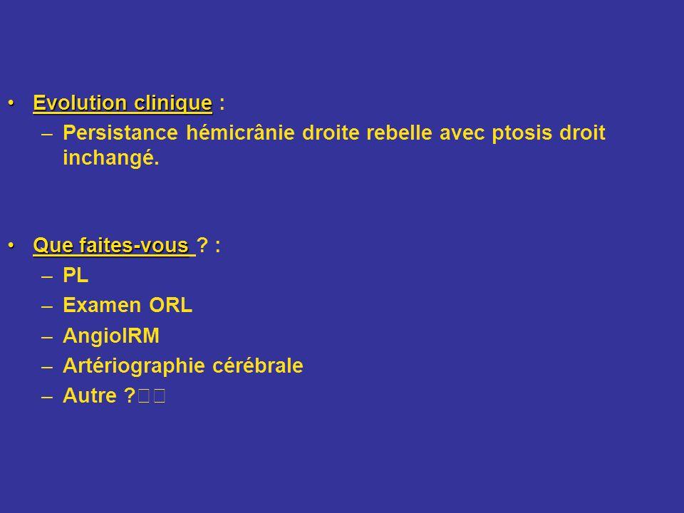 Evolution clinique : Persistance hémicrânie droite rebelle avec ptosis droit inchangé. Que faites-vous :
