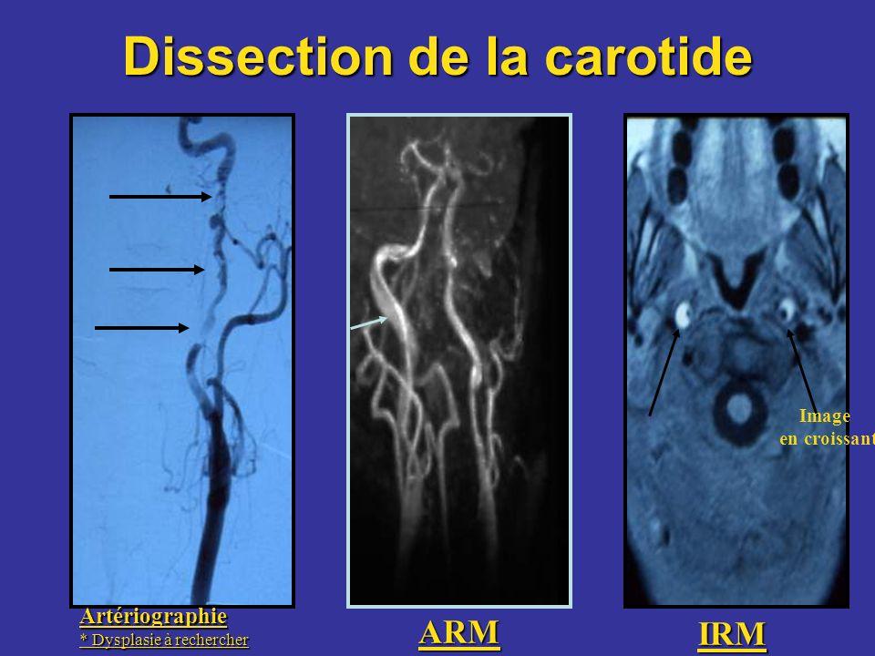 Dissection de la carotide