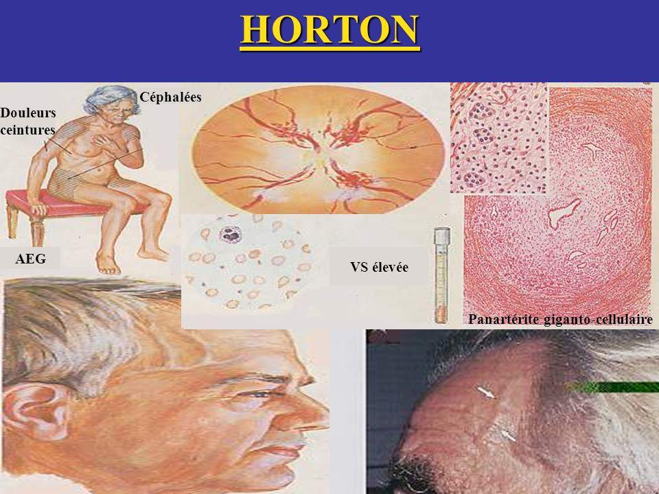 HORTON Céphalées Douleurs ceintures AEG VS élevée