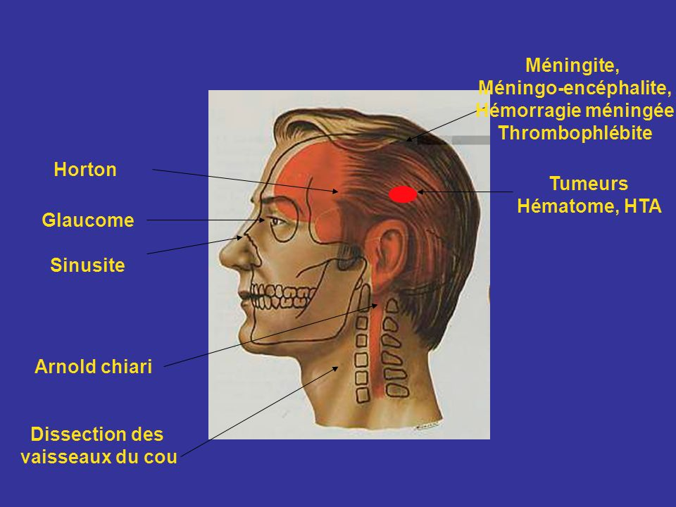 Méningite, Méningo-encéphalite, Hémorragie méningée. Thrombophlébite. Horton. Tumeurs. Hématome, HTA.