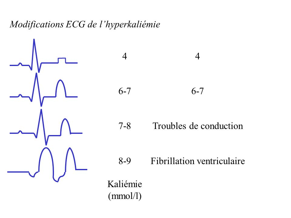 Modifications ECG de l'hyperkaliémie