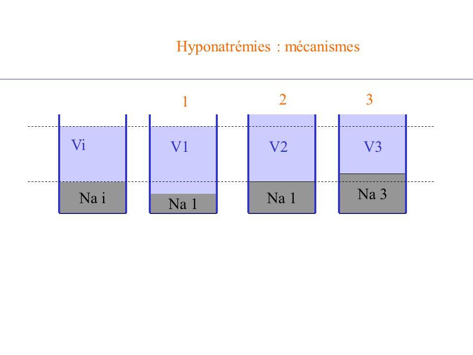 Hyponatrémies : mécanismes