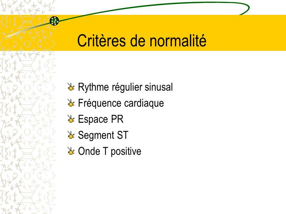 Critères de normalité Rythme régulier sinusal Fréquence cardiaque