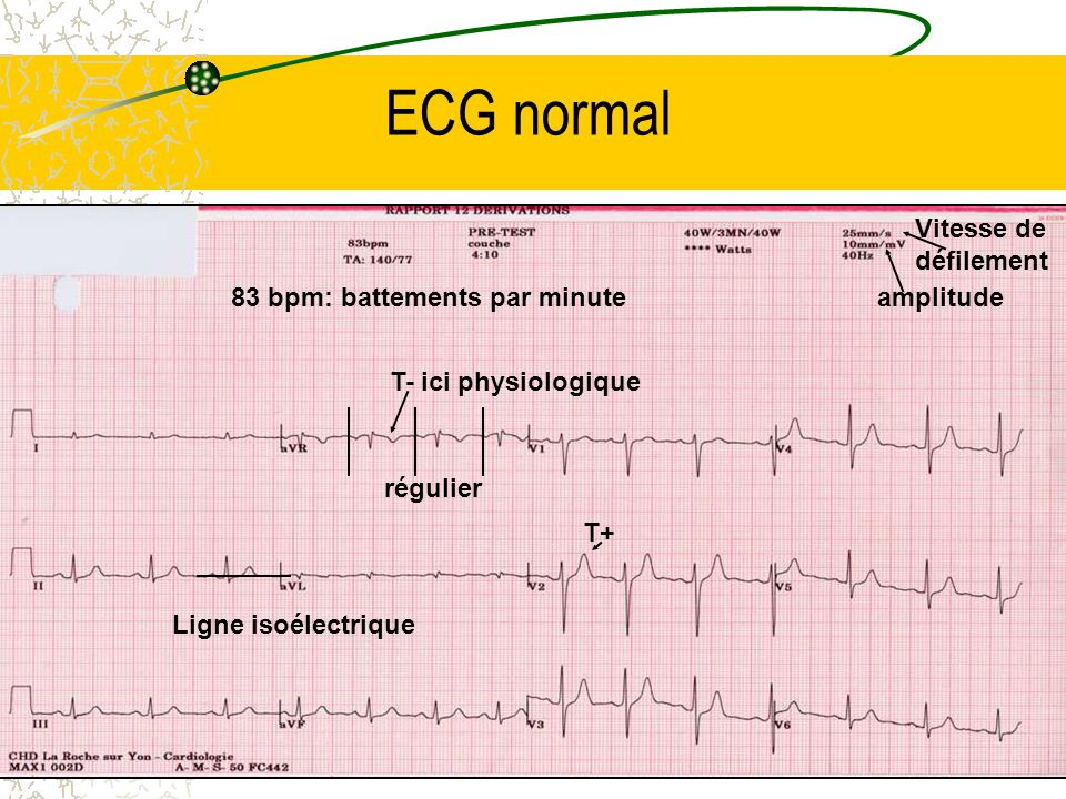 ECG normal Vitesse de défilement 83 bpm: battements par minute
