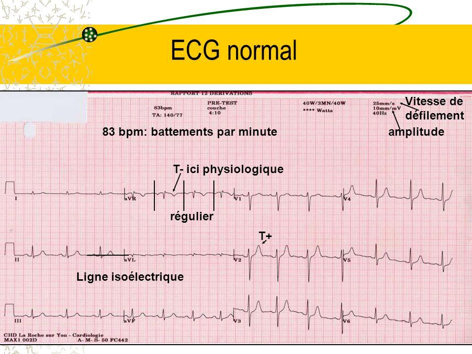 ECG normal Vitesse de défilement 83 bpm: battements par minute