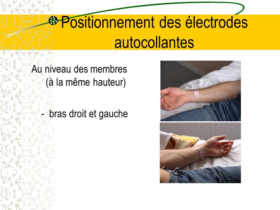 Positionnement des électrodes autocollantes