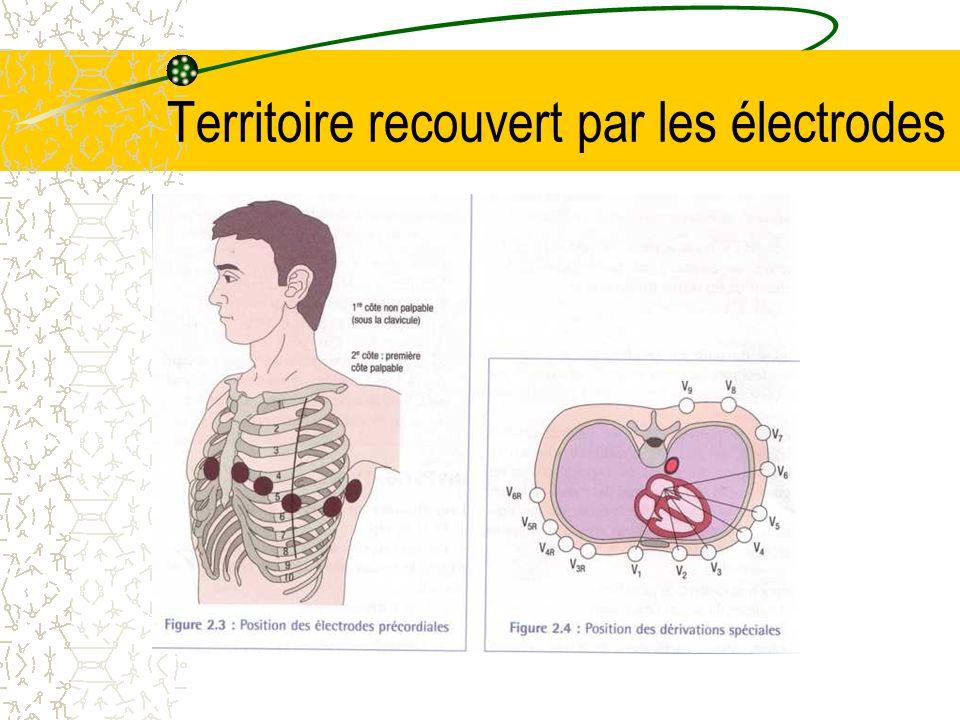 Territoire recouvert par les électrodes