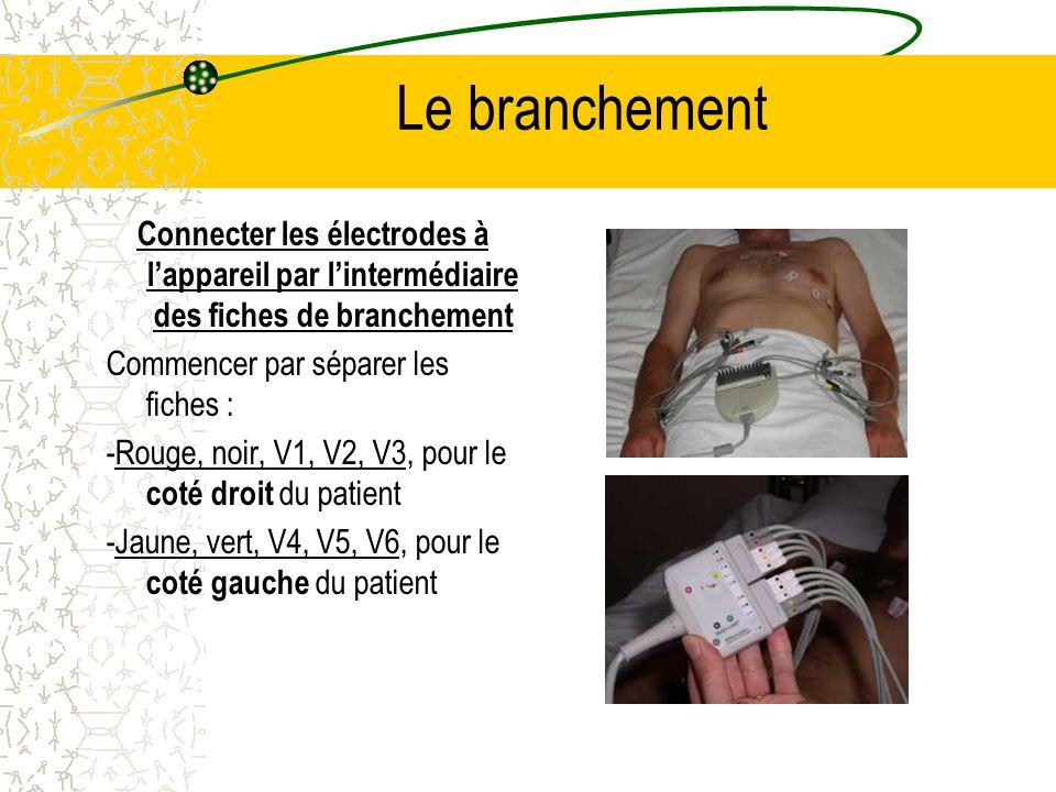 Le branchement Connecter les électrodes à l'appareil par l'intermédiaire des fiches de branchement.