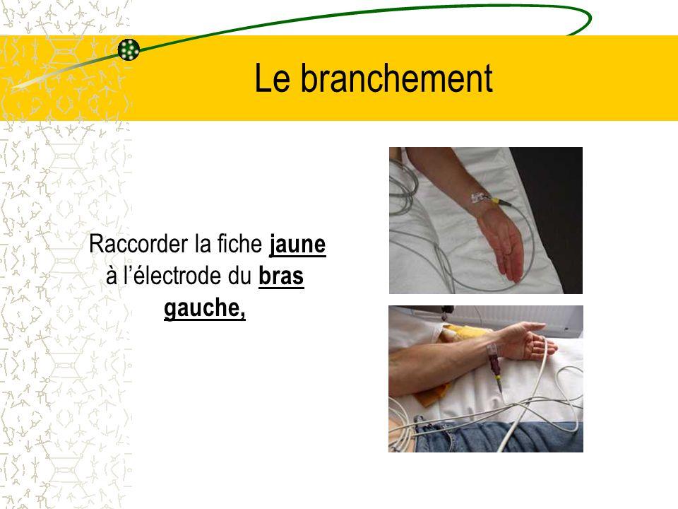 Raccorder la fiche jaune à l'électrode du bras gauche,