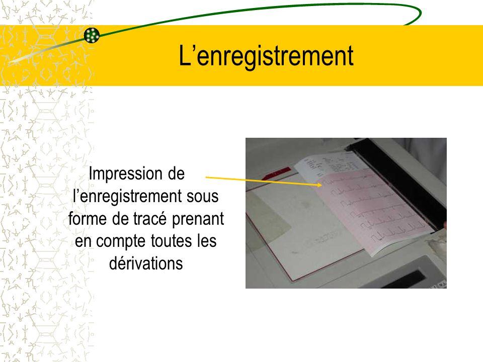 L'enregistrementImpression de l'enregistrement sous forme de tracé prenant en compte toutes les dérivations.