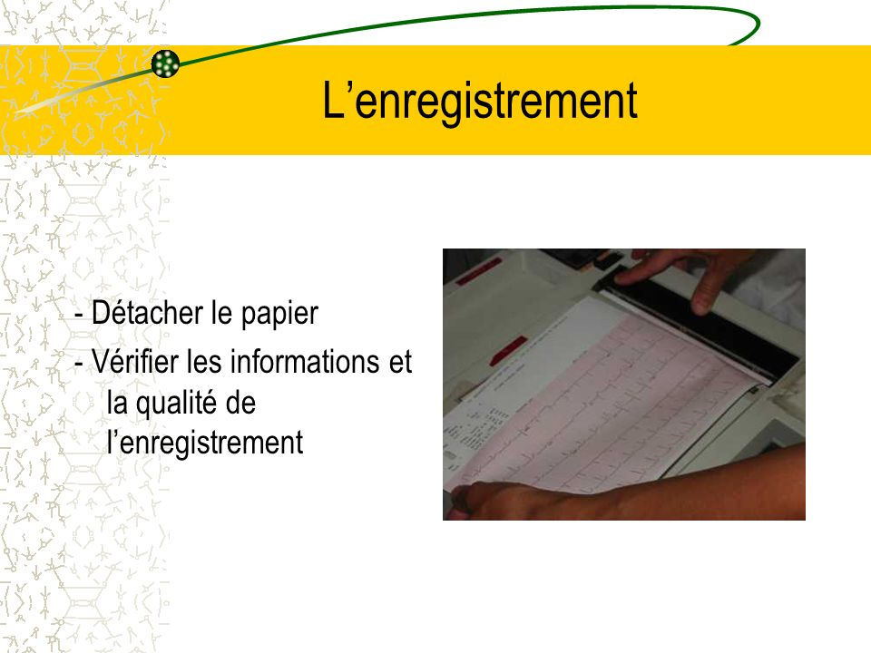 L'enregistrement - Détacher le papier