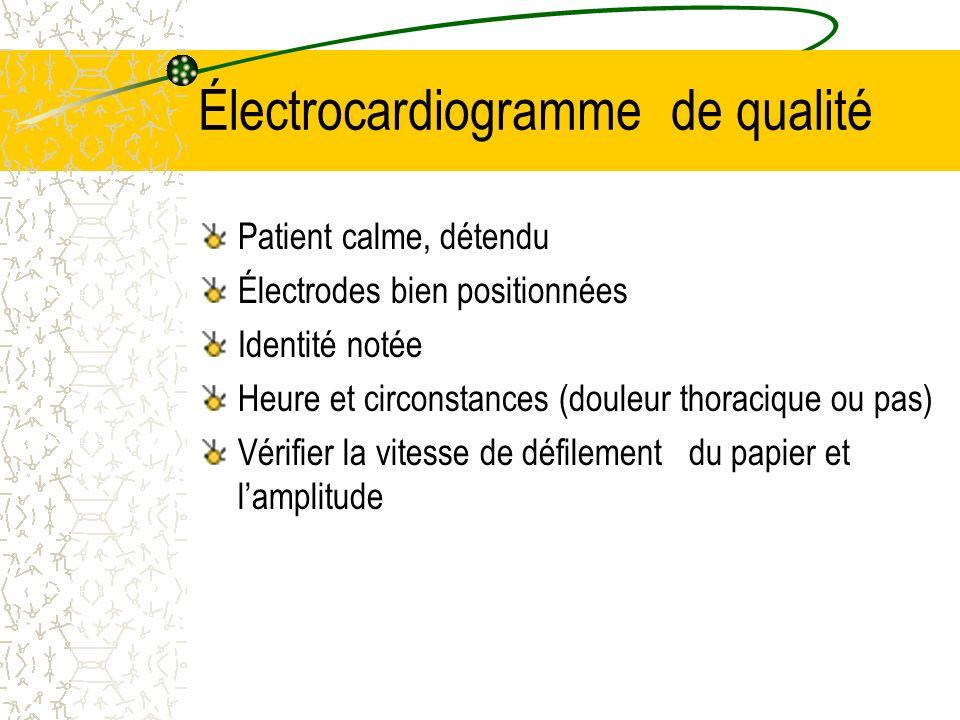 Électrocardiogramme de qualité