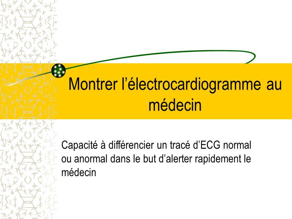 Montrer l'électrocardiogramme au médecin