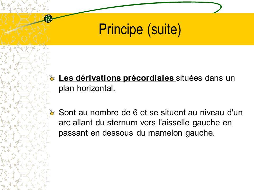 Principe (suite)Les dérivations précordiales situées dans un plan horizontal.