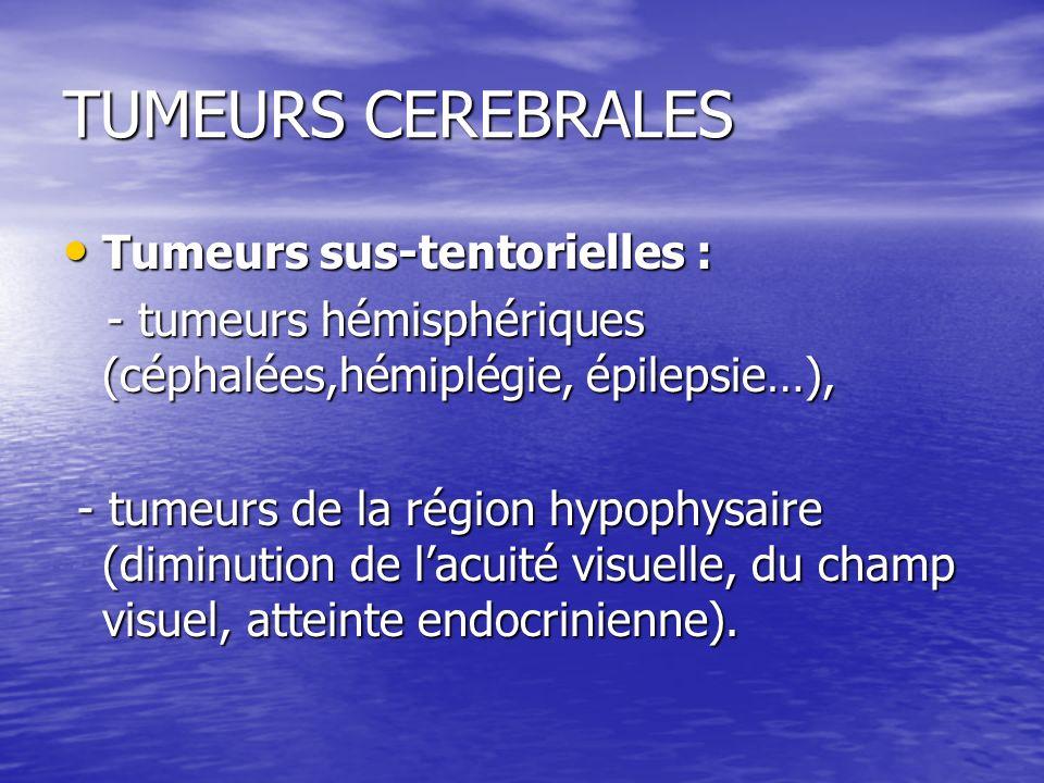 TUMEURS CEREBRALES Tumeurs sus-tentorielles :
