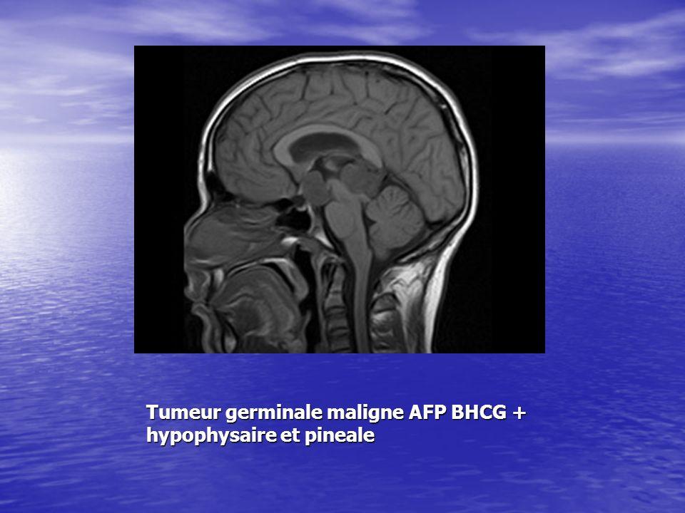 Tumeur germinale maligne AFP BHCG + hypophysaire et pineale
