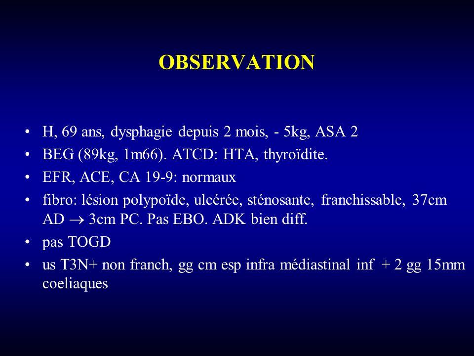 OBSERVATION H, 69 ans, dysphagie depuis 2 mois, - 5kg, ASA 2