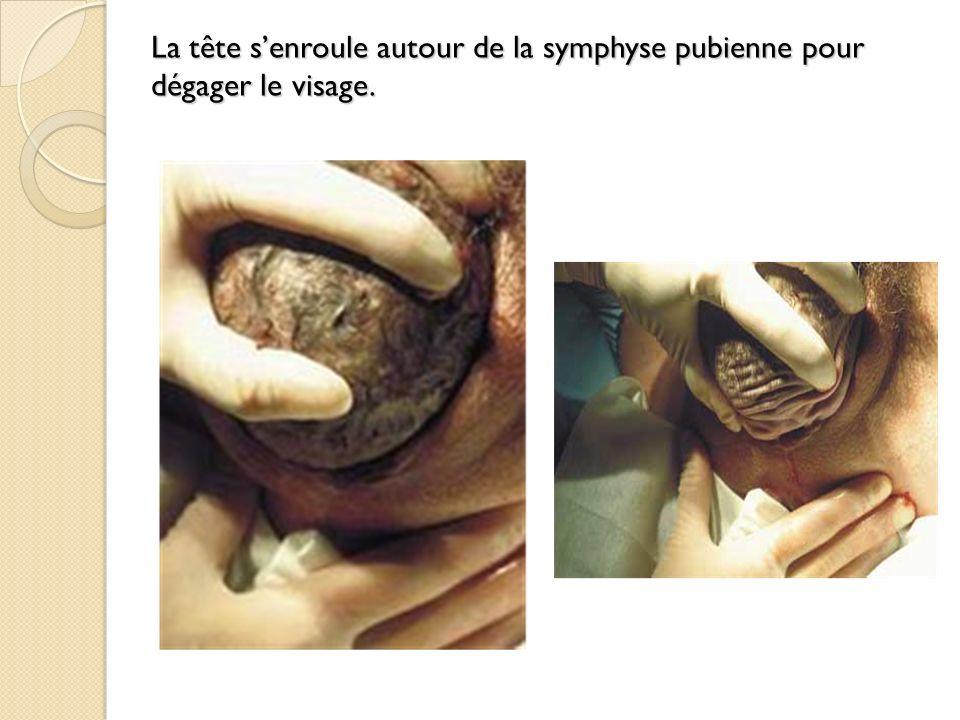La tête s'enroule autour de la symphyse pubienne pour dégager le visage.
