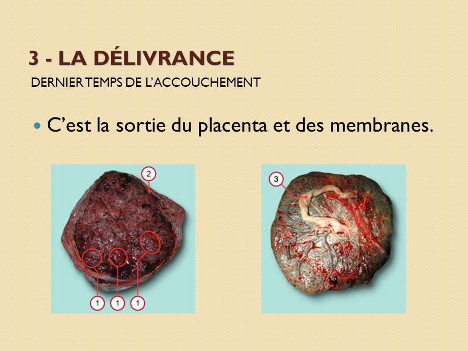 C'est la sortie du placenta et des membranes.
