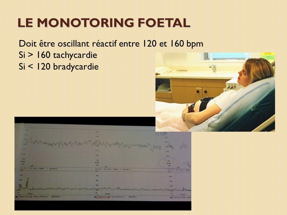 LE MONOTORING FOETAL Doit être oscillant réactif entre 120 et 160 bpm