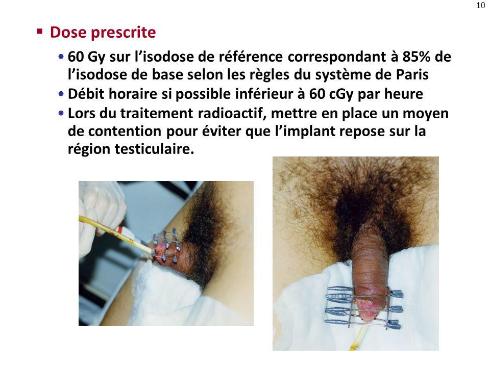 Dose prescrite 60 Gy sur l'isodose de référence correspondant à 85% de l'isodose de base selon les règles du système de Paris.